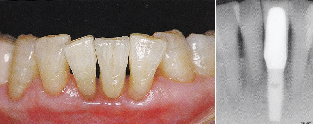 歯科インプラント
