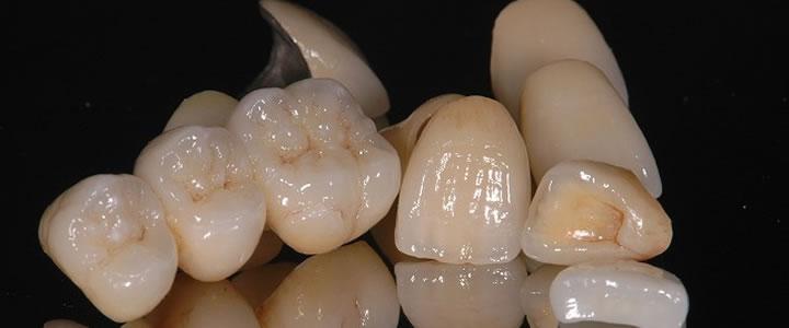 入れ歯の製作工程
