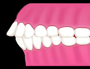 上顎前突症
