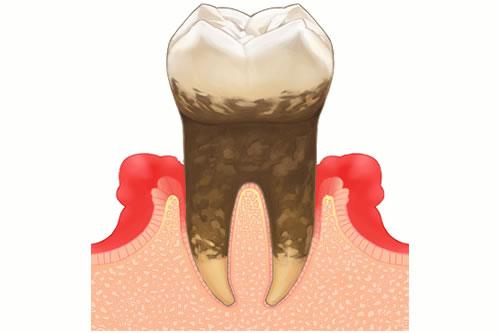 検査と基本治療で「歯周病の状態を知る」